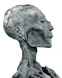 Aus: G. Elliot Smith, Catalogue Général des Antiquités Égyptiennes du Musée du Caire, The Royal Mummies, Kairo 1912, Pl. LV